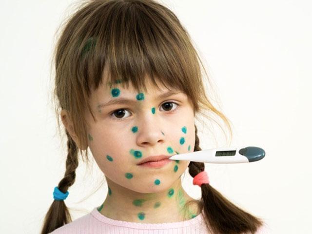 Çocuklarda Kızamık Belirtileri Nelerdir?