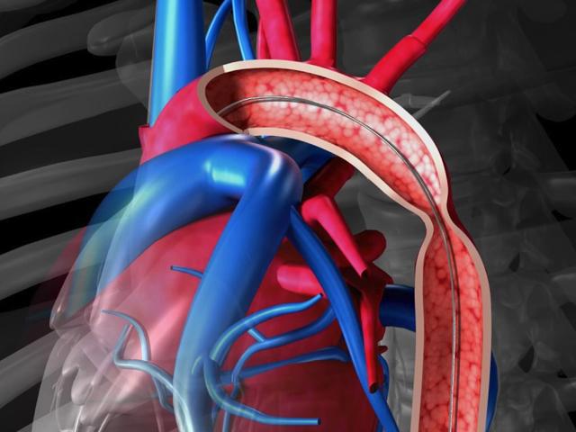 aort-koarktasyonu-nedir